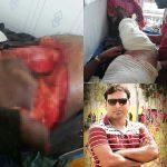 গোপালপুরে যুগান্তর প্রতিনিধি সেলিম হোসেন সড়ক দুর্ঘটনায় মারাত্মকভাবে আহত